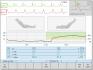 IKG CardioScreen 2000 software