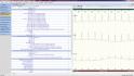 holter EKG software - vyhodnocení - konečná zpráva holteru