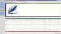 holter EKG software - vyhodnocení lorentzův plot