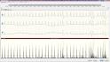 holter EKG software - příprava analýzy