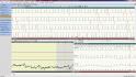 holter EKG software - zobrazení jednokanálového EKG