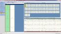 holter EKG - zobrazení skupin supraventrikulárních tepů