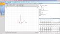 klidové EKG - přiblížení QRS komplexu
