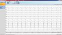 klidové EKG - software snímání 10 sec EKG