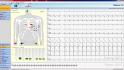 klidové EKG obrazovka pro kontrolu kvality signálu